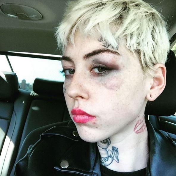 Illma Gore beaten Donald Trump supporter