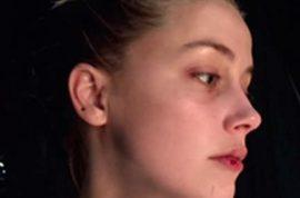 Amber Heard new abuse photos: Johnny Depp has long domestic violence history