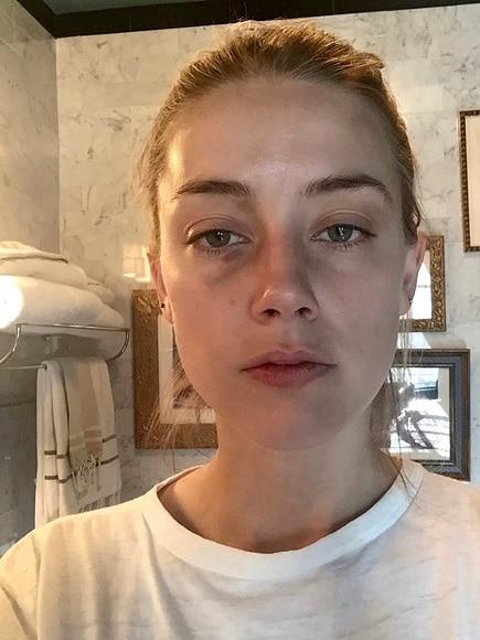 Amber Heard new abuse photos