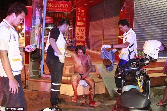 Thai wife slashes cheating husband's penis off