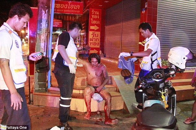 Thai wife slashes cheating husband's penis off