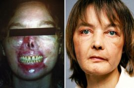 What went wrong? Isabelle Dinoire first face transplant patient dies