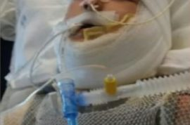 Why was Kayden Culp special needs boy set on fire? Arrests made
