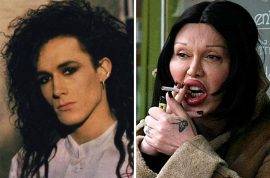 300 plastic surgeries: Pete Burns Dead or Alive singer dead of heart attack