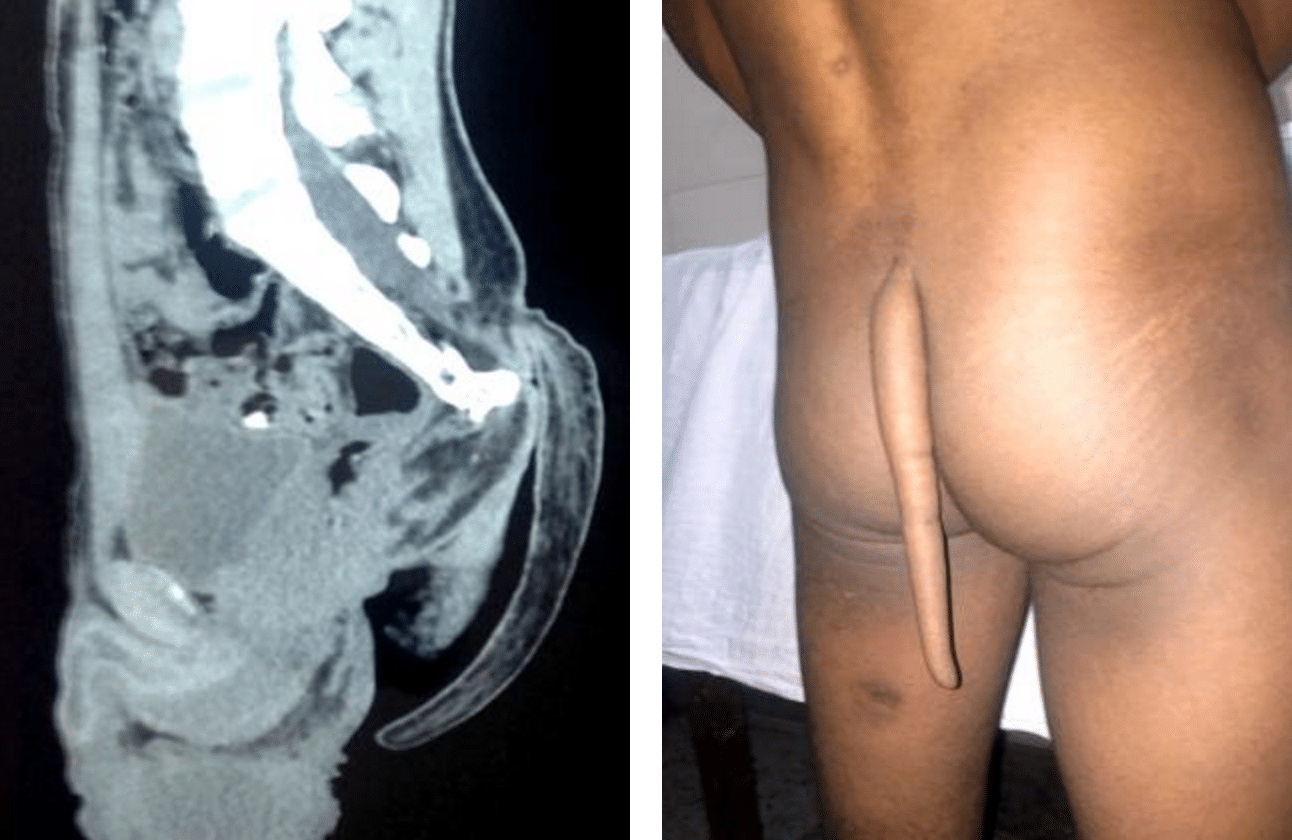 Indian boy 8 inch tail removed