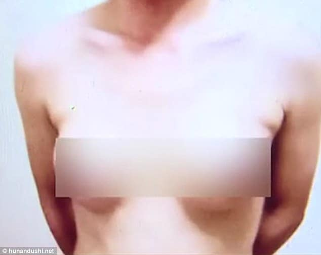 Unemployed Chinese man gets breasts implants