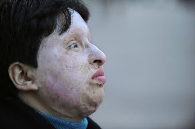 Iranian man blinded throwing acid toddler's face