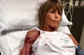 35 stitches: Debbie Urquhart Melbourne jogger attacked by kangaroo