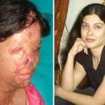 Pictured, Kanwal Qayyum Pakistani acid attack victim. Left as she appeared after the attack and right prior to the attack.