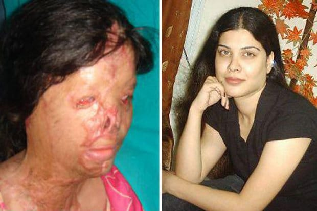 Kanwal Qayyum Pakistani acid attack victim