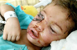 Zoey Green, 5, mauled by pit bull mix: ripped off eyelid, broken jaw.
