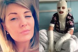 Yekaterina M: My jealous Russian boyfriend poured acid on my face