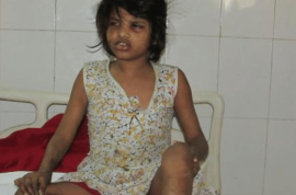 Who is Indian Mowgli girl? Raised by monkeys, grunts and walks on all fours