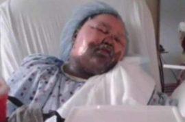 Jamoneisha Merritt victim of 'hot water challenge' by best friend during sleepover.