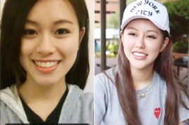 Berry Ng Youtube star: Why I regret getting 30 plastic surgeries for my (ex) boyfriend