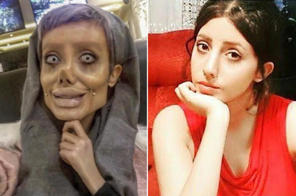 Teen behind viral 'Angelina Jolie' plastic surgery photos reveals she lied