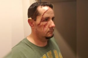 41 stitches: Naples man mauled by bear while taking dog for walk (but survives).