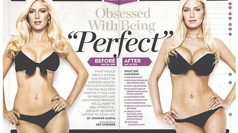 Celebrity liposuction