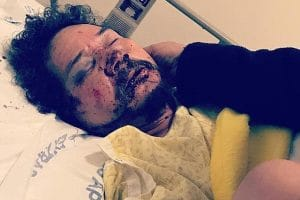 $96K: South Los Angeles street vendor beaten expected six months to recover
