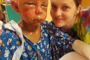 7 year old Missouri boy doused in nail polish remover set on fire by 8 year old child