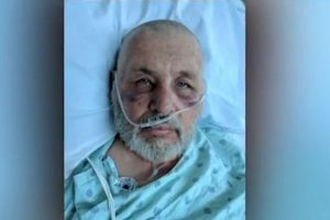 Texas man stung 600 times by killer bees while mowing lawn