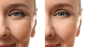 Getting rid of smile lines without surgery.