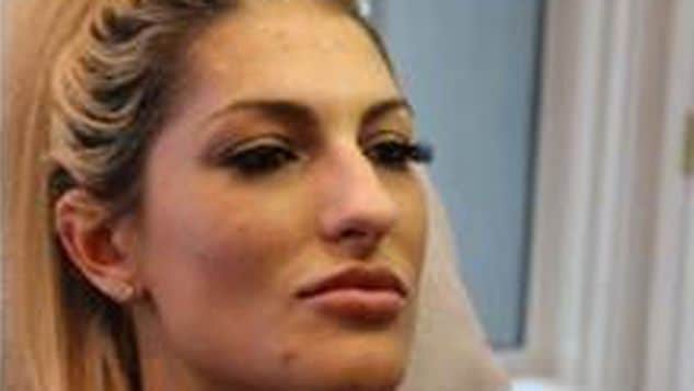 Lauren L. Klavano Botox Bandit