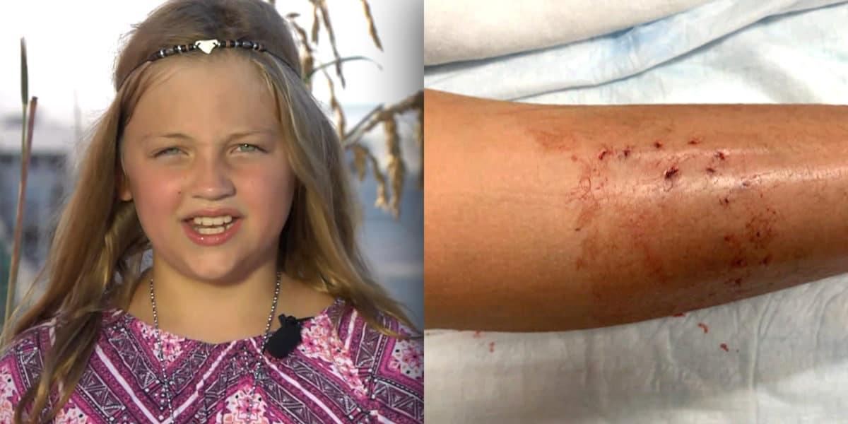 Maggie Crum New Smyrna Beach shark bite