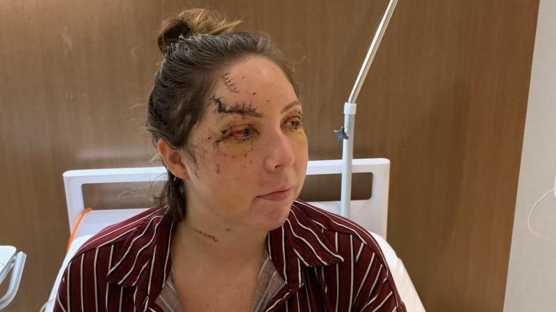 Canadian flight attendant attacked at Mexico resort
