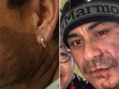 Mahud Villalaz Milwaukee acid attack