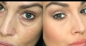 reduce or hide under eye circles