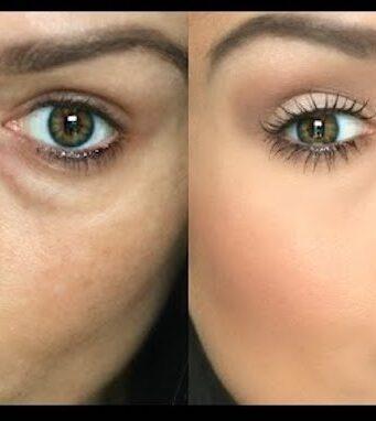 reduce or hide under eye circles