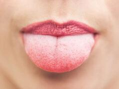 Vapers Tongue