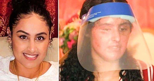 Nafiah Ikram acid attack