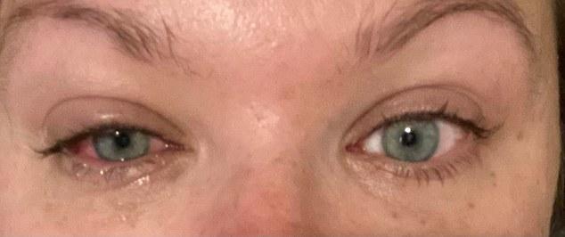 Katie Beith eye glued shut