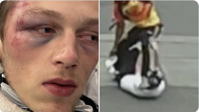 Caliber Visuals photographer brutally attacked & robbed in Seattle